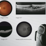 Indo amplía su gama de OCT con Retina Scan Duo