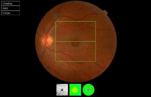 ARTÍCULO DIVULGATIVO: La radiación UV y su impacto en la salud ocular