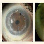 MSK de Conóptica, lentes de contacto esclerales para adaptaciones exigentes