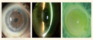 MSK-lentes esclerales-Conoptica